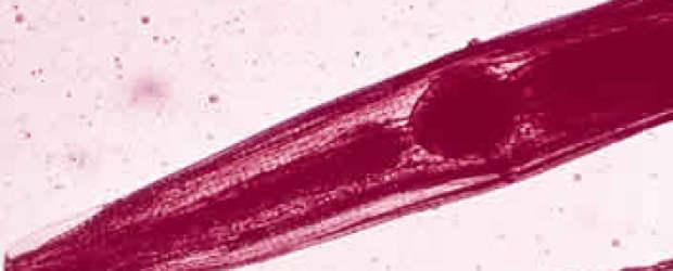 Madenwürmer