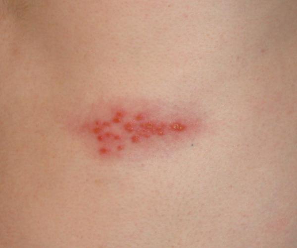 Gürtelrose Herpes Zoster