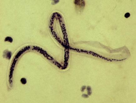 Spulwürmer