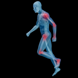 Gefährdete Gelenke bei Rheuma