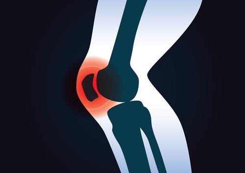Innenbanddehnung im Knie - Symptome und Behandlung