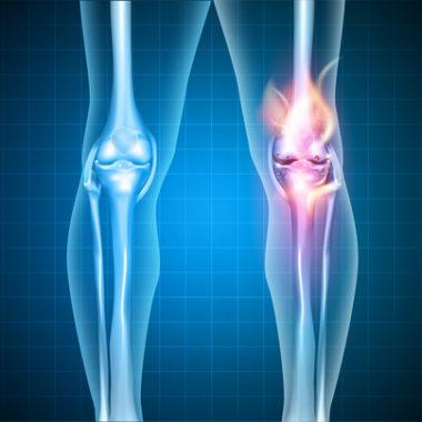 Knie brennt wie Feuer vor Schmerzen