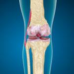 Knochenmarködem im Knie - Therapie und Symptome