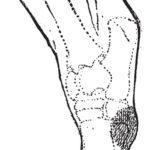 Synovialitis am Knie - Therapie, Symptome und Heilung