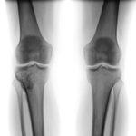 Tumor im Kniegelenk - Therapie und Symptome