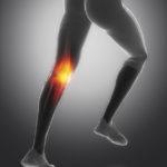 Außenmeniskusriss - Therapie und Symptome