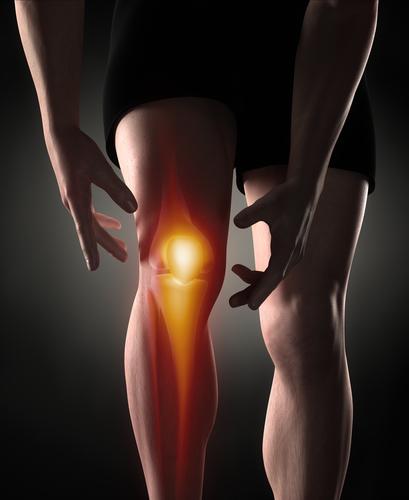 Bone Bruise Knie - Therapie, Symptome und Heilungsdauer