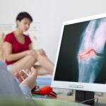 Mediale Gonarthrose im Knie - Therapie, Folgen