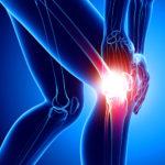 Überbelastung Knie - Therapie, Symptome, Ursachen und Folgen