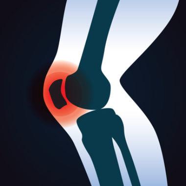 Dickes Knie - Ursachen, Therapie und Behandlung