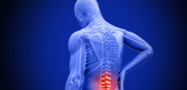 Spinalkanalstenose LWS - Symptome, Therapie