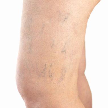 Thrombose im Knie - Ursache, Symptome, Therapie