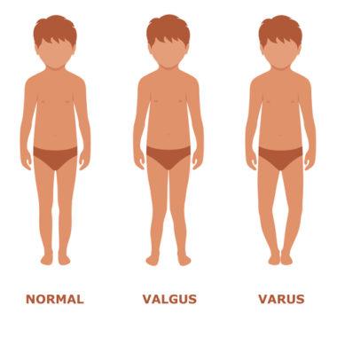 Varusgonarthrose im Knie - Therapie und Folgen