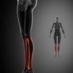 Wadenbein Schmerzen - Therapie