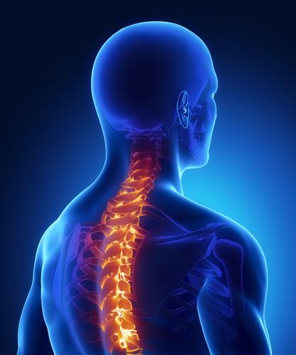 Wirbelkanalverengung - Symptome, Ursachen, Therapie