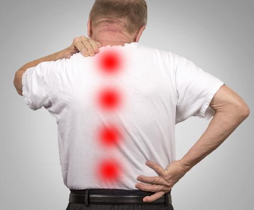 Zervikale Spinalkanalstenose - Symptome, Therapie