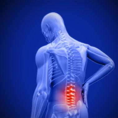 Ziehen im unteren Rücken - Ursachen, Diagnose und Therapie