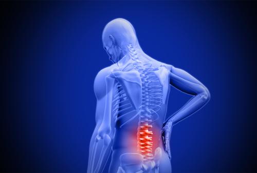 Ziehen im unteren Rücken – Ursachen & Diagnose