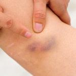 Knie geprellt - Symptome, Therapie bei Knieprellung