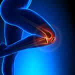 Künstliches Kniegelenk wie lange krank? Unsere Antwort