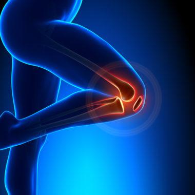 Künstliches Kniegelenk - wie lange krank?