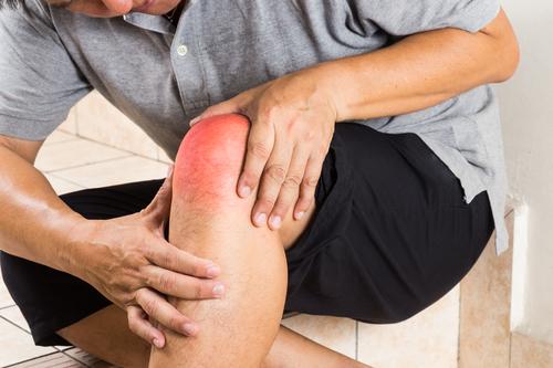 Kreuzbandzerrung - Symptome und Therapie