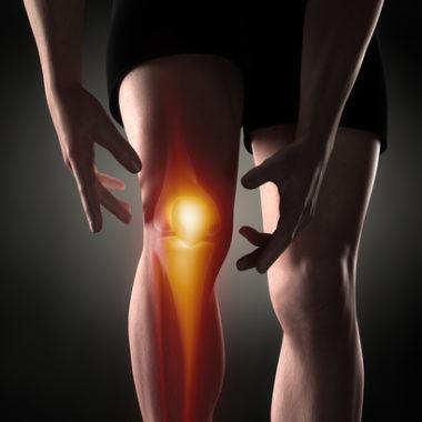 Aktivierte Gonarthrose - Symptome und Therapie