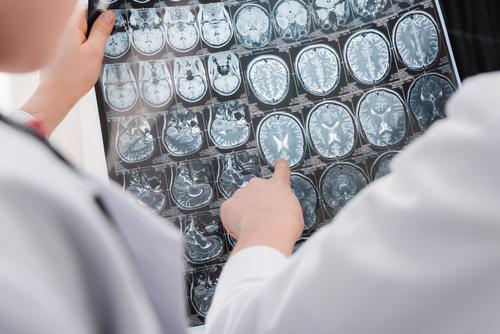 Folgen einer Hirnblutung