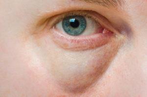 Geschwollenes Augenlid - Ursachen und Therapie