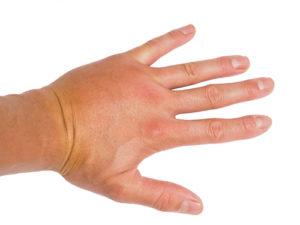 Geschwollene Hände - was tun?
