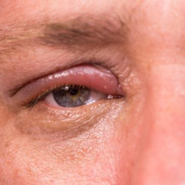 Augenlidentzündung – Dauer der Heilung und Entzündungsformen
