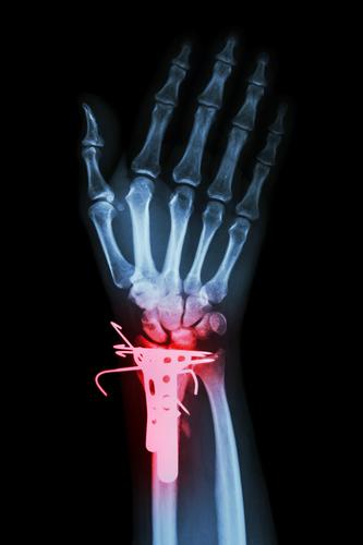 Distale Radiusfraktur – Symptome, Behandlung und Dauer