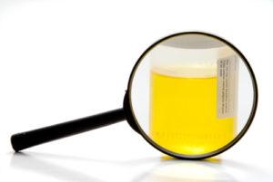 Fäden im Urin – was kann das bedeuten