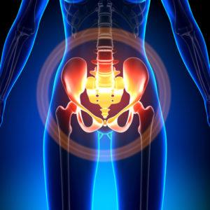 Kreuzbeinschmerzen – Ursachen und Therapie