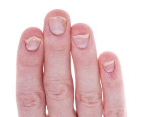 Weiße Fingernägel – Grund zur Panik