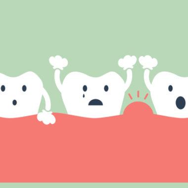 Geschwollenes Zahnfleisch – Behandlung und Therapie