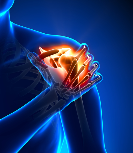 AC Gelenk – Folgen der Verletzung
