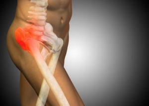 Femurkondylus – Heilungsdauer und Therapie von Frakturen