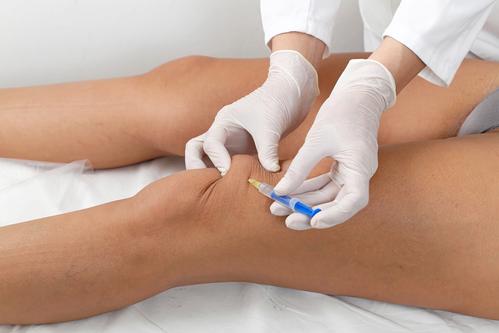 Hyaluronsäure ins Knie – das ist es doch wert