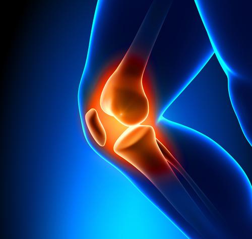 Was heißt Kniebinnenschaden und wann wird operiert