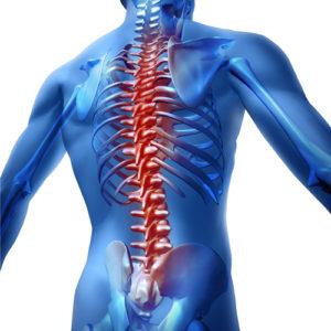 Neuroforamina – Therapiemethoden