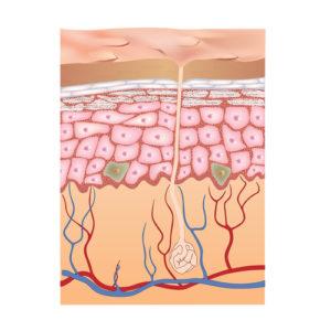 Talgzyste – Behandlung und Therapie