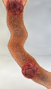 Tubuläres Adenom – Ursachen und Behandlung