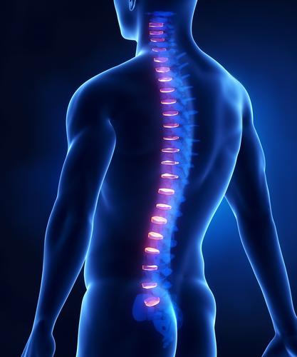 Uncovertebralarthrose – Behandlung und Therapie