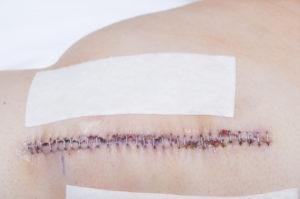Bursektomie – Nachbehandlung danach