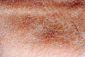 Erythrasma – Behandlungsdauer und Therapie