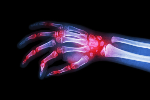 Gicht mit Homöopathie behandeln – kann das helfen?