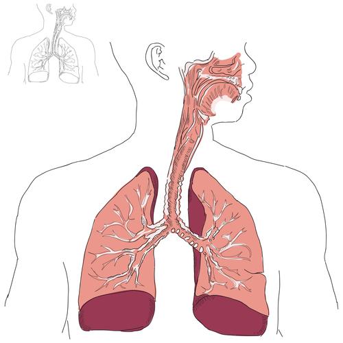 Luftröhrenentzündung – Behandlung und Therapie