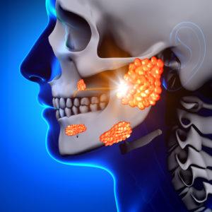 Parotitis – Symptome und Therapie