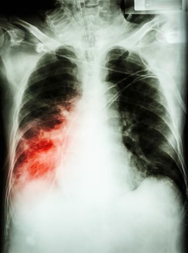 Peribronchitis – Ursachen und Therapie